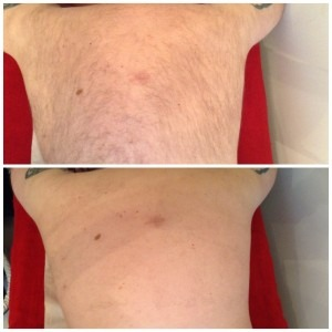 IPL Laser Hair Removal - before/after