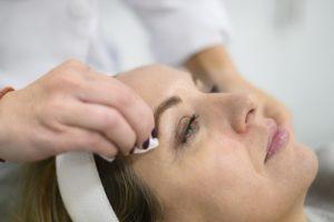 Anti-aging treatments, skin peels