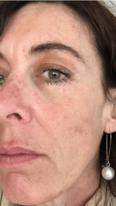 Cosmo Peel Forte after treatment